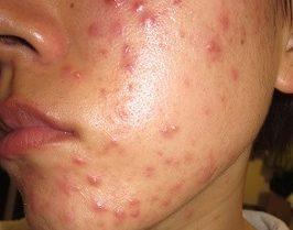 東京でニキビ専門レーザー治療口コミ!おすすめ皮膚科・病院