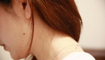 横浜市(神奈川県)でほくろが除去できる美容外科・皮膚科・形成外科探し