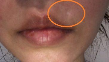 鼻の横・下にできた大きいほくろの除去画像 安い費用で跡も目立たない治療方法