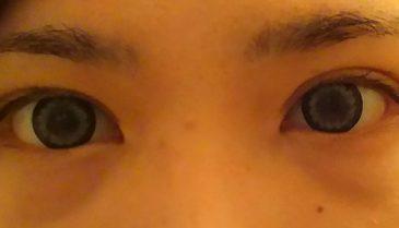 コンデンスリッチフェイス 目の下の術後 湘南美容外科で頬や額も応相談
