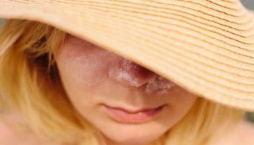 なかなか治らないクレーター肌改善策 皮膚科の治療費や値段について