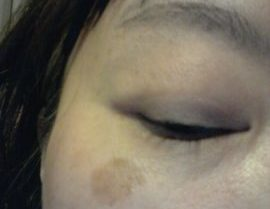 紫外線で40代でもシミだらけ!老人性の顔のシミを消す皮膚科探し