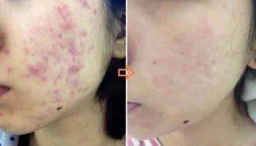 皮膚科のケミカルピーリング効果と回数・値段!毛穴開きにも対応する美肌エイジングケア