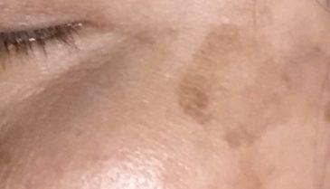 お母さんの肝斑、老人性色素斑のレーザー治療の方法!東京新宿の皮膚科で
