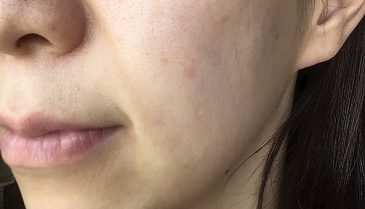 ケミカルピーリングとは何?頬の毛穴の一回効果と皮膚科料金