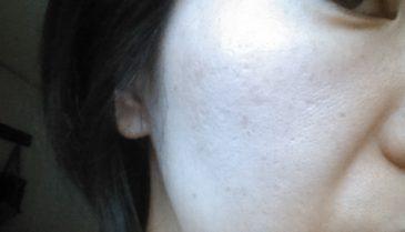 東京でニキビ跡・赤みや凸凹の皮膚科での治療方法と治し方