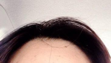 頭頂部、前髪、分け目、生え際が薄い・ボリューム減った女性のための専門治療