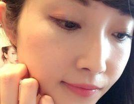 名古屋の美容皮膚科で顔のほくろ・イボ除去!自分自身の心と葛藤する毎日からの解放