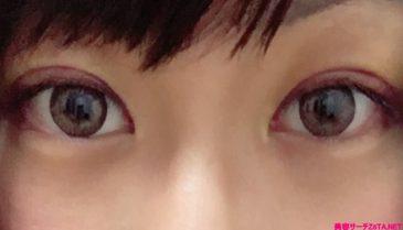 名古屋で二重全切開!瞼の美容整形名医!抜糸後の腫れが落ち着くまでを公開!