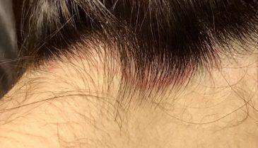 自分の髪を移植!痛みは?おでこ植毛手術の値段は安いのか?