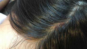 生え際植毛の効果感想はアスク井上クリニックが症例が良くて人気!