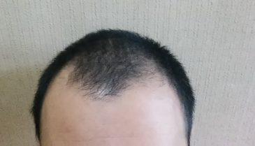 頭頂部、頭頂部、M字の薄毛を回復し復活へ!薄毛改善対策