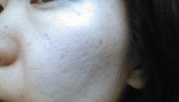 広島県福山市周辺の美容皮膚科でニキビ治療!美肌を目指すために