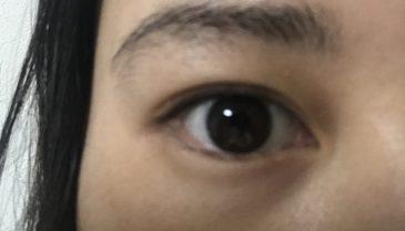 アイプチで目を腫らす位なら思い切って、銀座でプチ整形で二重に!