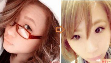 大阪梅田の湘南美容外科で二重整形!口コミでフォーエバー二重術はブログでも人気