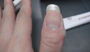 指のイボの原因と治し方!病院のレーザーの治療費値段や期間は?