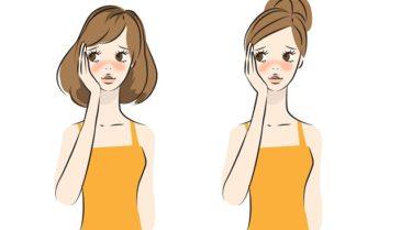 赤ら顔・赤み治療対応クリニックと赤ら顔対策商品ランキング